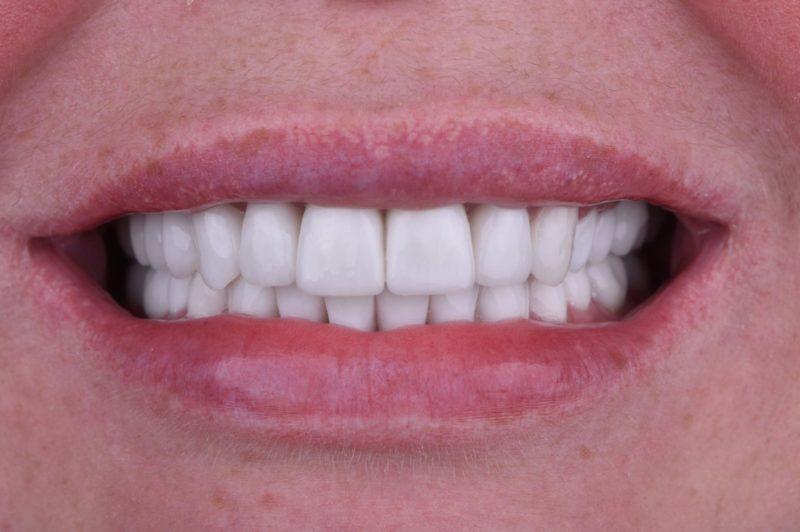Реконструкция улыбки 7