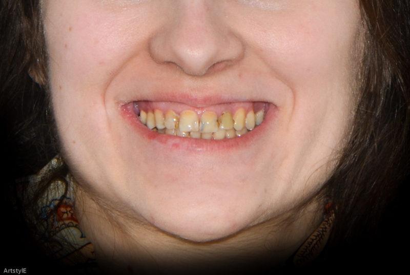 Реконструкция улыбки 11