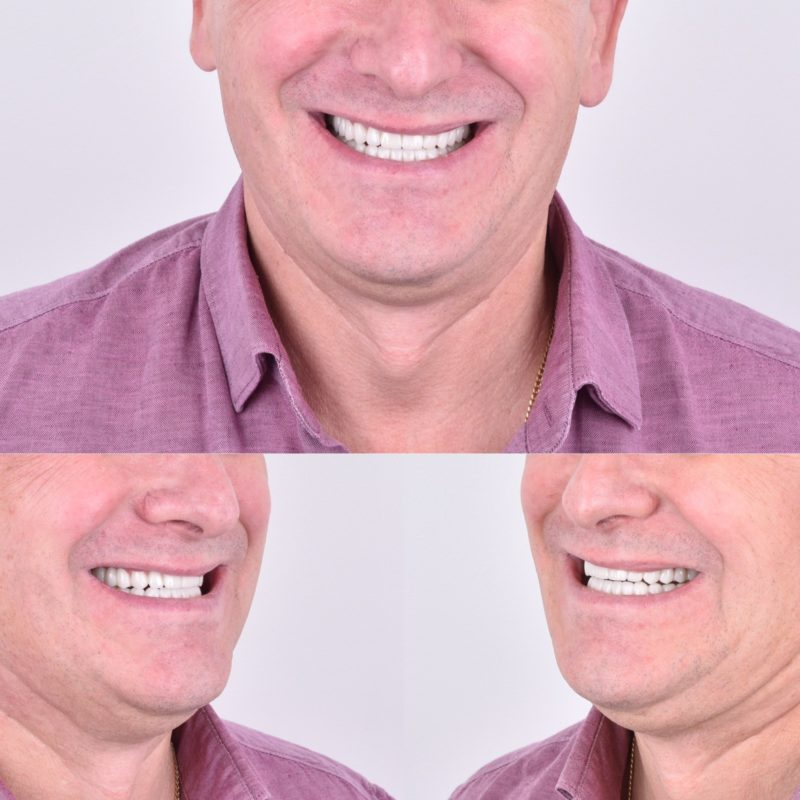 Реконструкция улыбки 12
