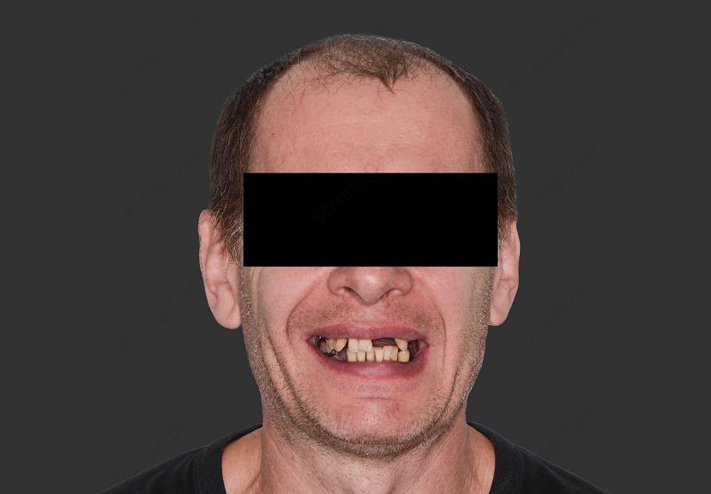 Имплантация зубов при полной потере зубов