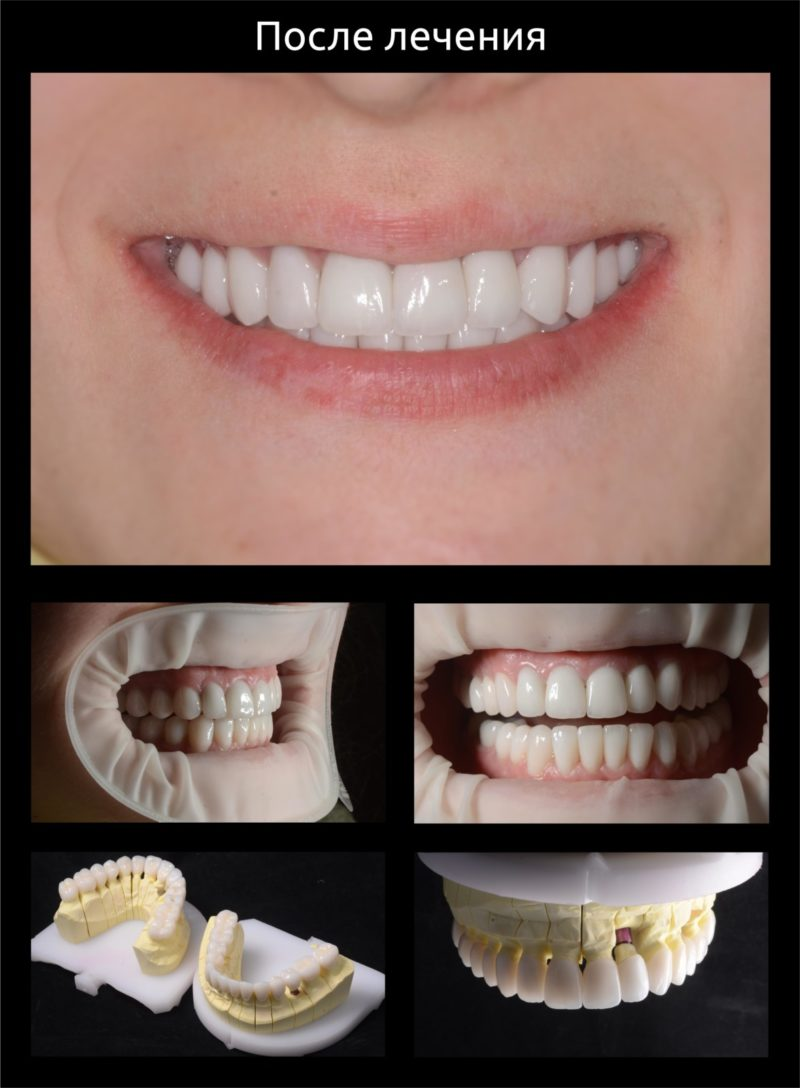 Реконструкция улыбки
