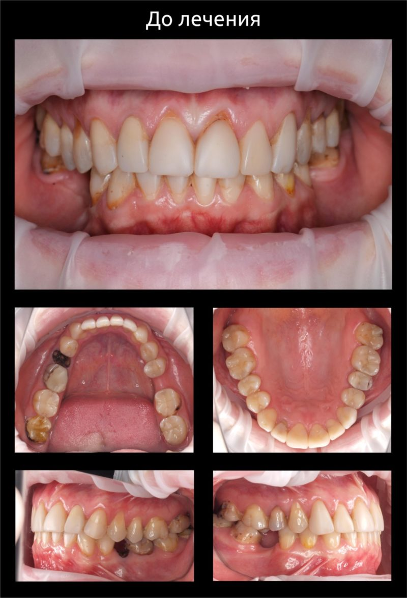 Реконструкция улыбки 2