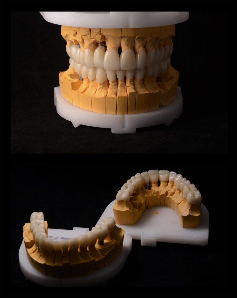 Реконструкция улыбки 3
