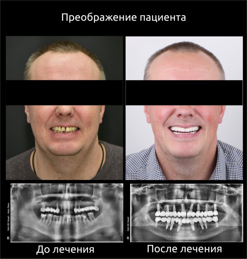 Реконструкция улыбки 10