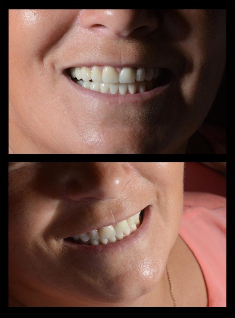 Реконструкция улыбки 4
