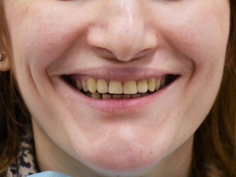 Реконструкция улыбки 5